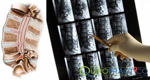 hernia discal solución al dolor del nervio ciático