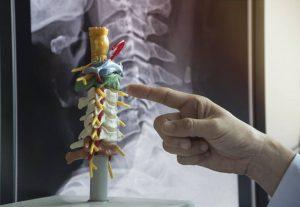 quiropractico dolor de cuello