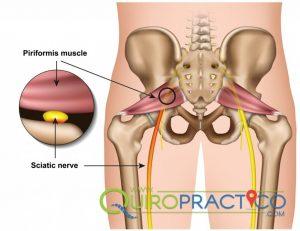 Síndrome Piriformes solución al dolor del nervio ciático