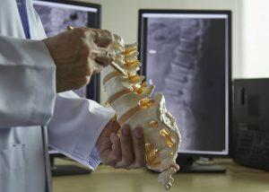 Subluxación Lumbar solución al dolor del nervio ciático