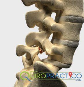 espondilolistesis solución al dolor del nervio ciático