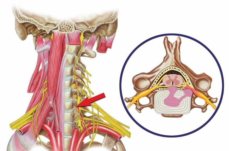 Disco Herniado Cervical y quiropractico