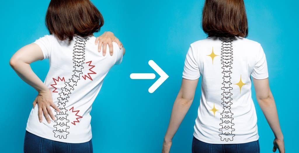 dolor espalda escoliosis