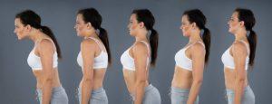 postura y quiropractica