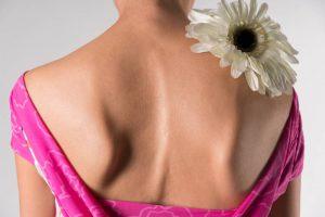 mujer con escoliosis de espalda
