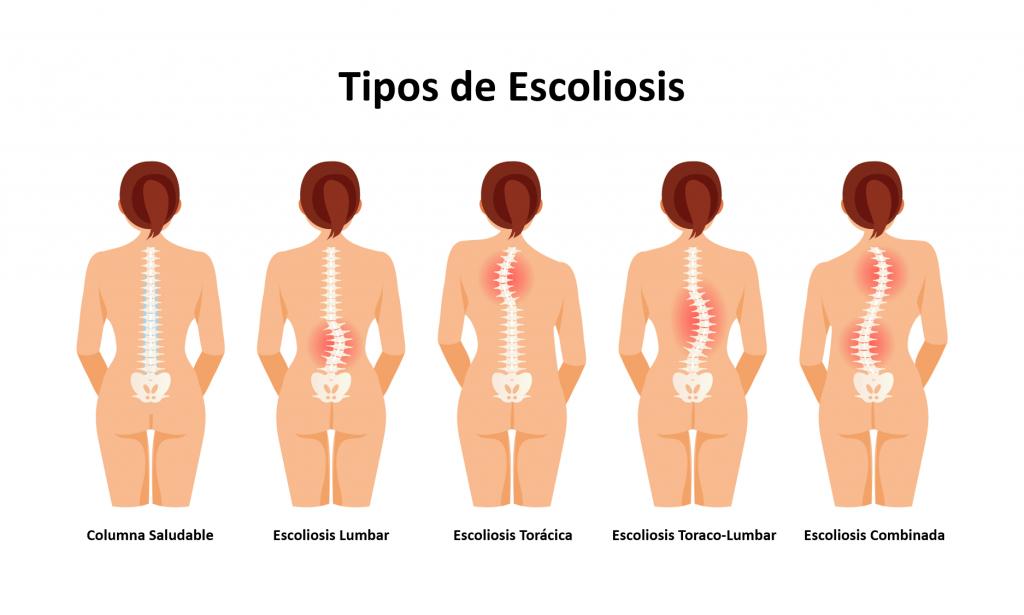 tipos de escoliosis