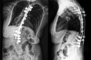 cirugía escoliosis